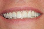 Smile-Makeover-with-Porcelain-Veneers-After-Image