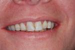 Smile-Makeover-with-Bonding-Before-Image