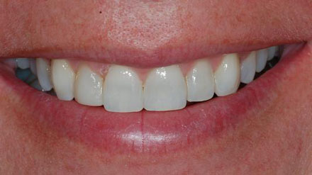 Lancaster, PA Invisalign: Straighten your crooked teeth