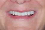 Porcelain-Veneers-Bonding-and-Crowns-After-Image